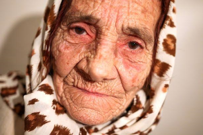 80-year-old spiritual healer cures blindness by licking patients' eyeballs