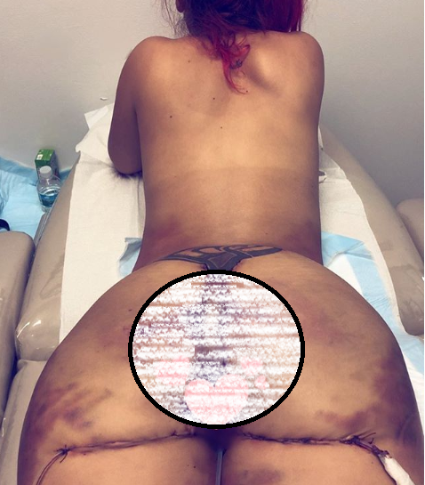 Fitness model who underwent surgery to remove her silicone injections, shares new photo of her flat behind (Photos)